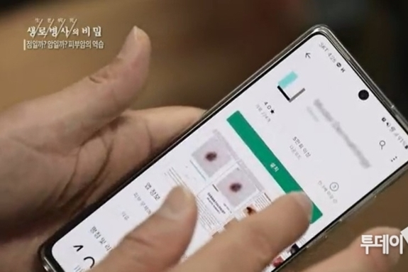 [해봤습니다] AI로 진단하는 피부암? 스마트폰 앱 3종 비교